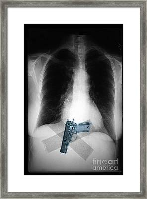 Chest X-ray Showing Hidden Gun Framed Print by Scott Camazine