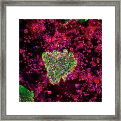 Colon Cancer Cells Framed Print by Ammrf, University Of Sydney