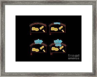 Colon Cancer Stages, Artwork Framed Print by Francis Leroy, Biocosmos
