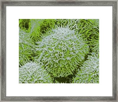 Colonial Freshwater Alga Framed Print by Steve Gschmeissner