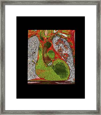 Coronary Artery Bypass Graft Framed Print by Anders Persson, Cmiv