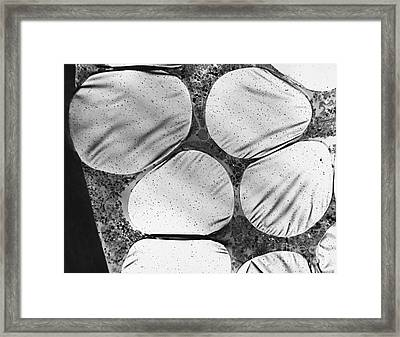 Dalkon Shield Iud Tailstring Framed Print by David M. Phillips / The Population Council