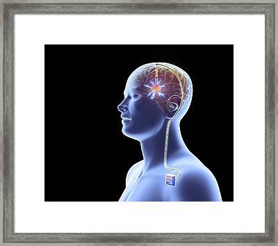 Deep Brain Stimulation Framed Print
