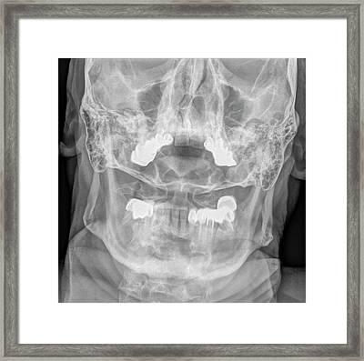 Dens Fracture. Cervical Spine X-ray Framed Print