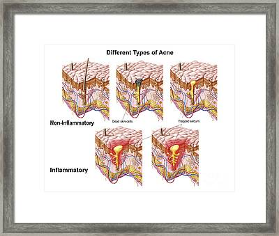 Different Types Of Acne Framed Print by Stocktrek Images