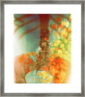 Distended Bowel In Alcohol And Drug Abuse Framed Print