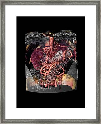 Distended Mesenteric Artery Framed Print by Anders Persson, Cmiv