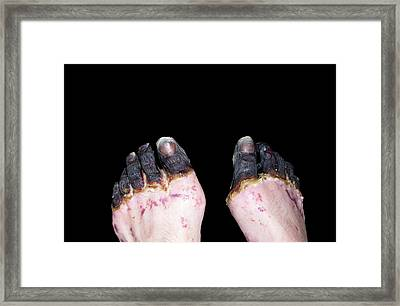 Dry Gangrene Caused By The Plague Framed Print by Cdc