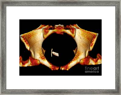 Ectopic Iud Contraceptive, 3d Mri Scan Framed Print by Du Cane Medical Imaging Ltd.