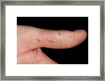 Eczema Of The Hand Framed Print by Dr P. Marazzi/science Photo Library