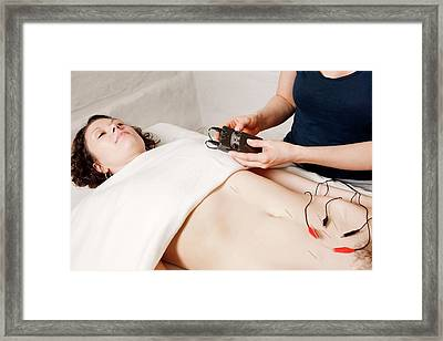 Electroacupuncture Fertility Treatment Framed Print