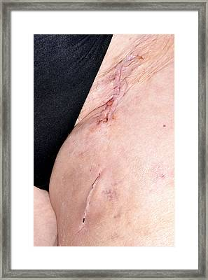 Endarterectomy Wound Framed Print by Dr P. Marazzi/science Photo Library
