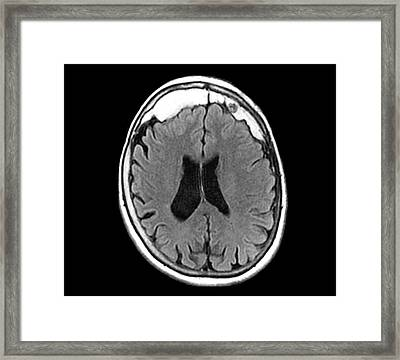 Excess Skull Growth Framed Print by Zephyr