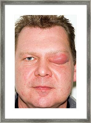 Eyelid Abscess Framed Print by Dr P. Marazzi/science Photo Library