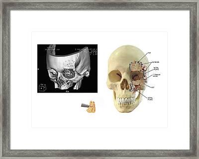 Facial Skull Fractures Fixation Framed Print