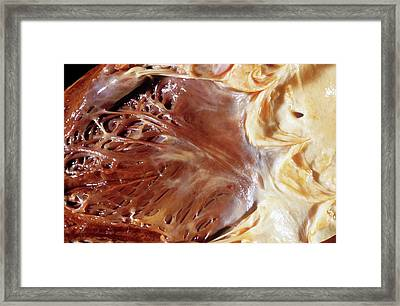 Fatty Heart Framed Print by Pr. R. Abelanet - Cnri