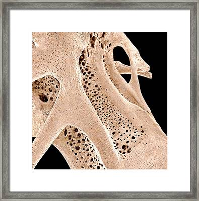 Fish Bone, Sem Framed Print by Science Photo Library