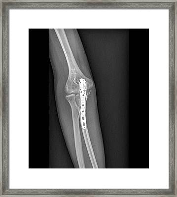 Fixed Broken Elbow Framed Print by Zephyr