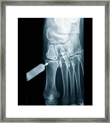 Foot Pain Being Treated Framed Print