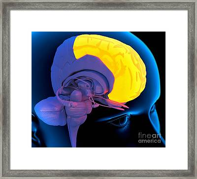 Frontal Lobe In The Brain, Artwork Framed Print by Roger Harris