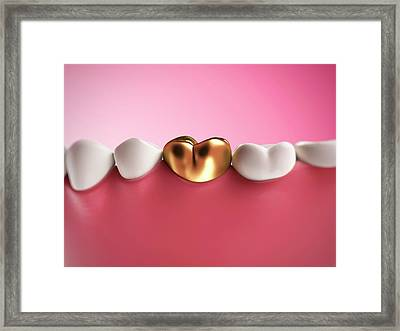 Gold Filling In Tooth Framed Print by Sebastian Kaulitzki