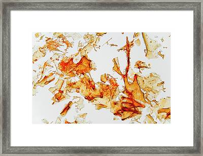 Haemoglobin Crystals Framed Print