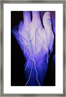 Hand Identification Research Framed Print by Louise Murray