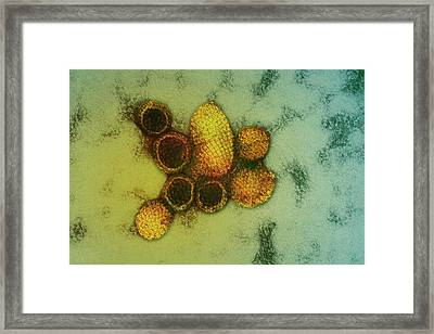 Hantavirus Particles Framed Print by Ami Images