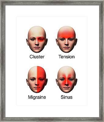 Headache Types Framed Print