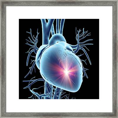 Heart Attack Framed Print by Alfred Pasieka