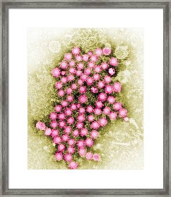 Hepatitis Virus Tem Framed Print by Science Source