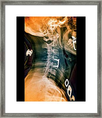 Herniated Spinal Disc After Treatment Framed Print
