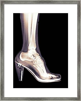 High Heel Shoe X-ray Framed Print