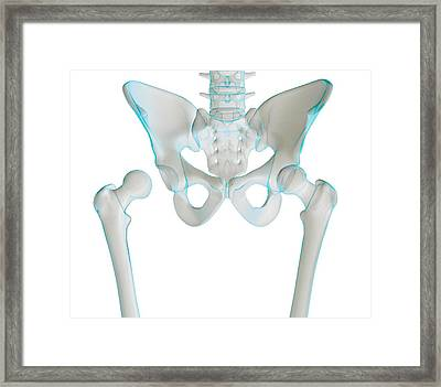 Hip Joint Bones And Anatomy, Artwork Framed Print by Science Photo Library