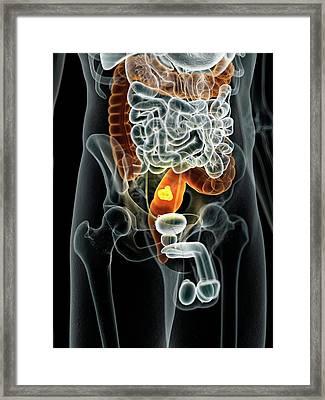 Human Bowel Cancer Framed Print by Sciepro