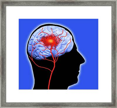 Human Brain Showing Stroke Framed Print by Victor De Schwanberg