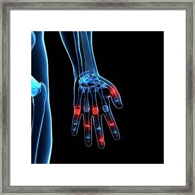 Human Finger Joints Framed Print