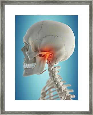Human Jaw Framed Print by Sciepro