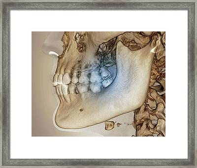 Human Jaw Framed Print by Zephyr