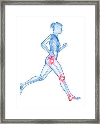 Human Joints Framed Print by Sebastian Kaulitzki
