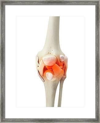 Human Knee Bones Framed Print by Sciepro