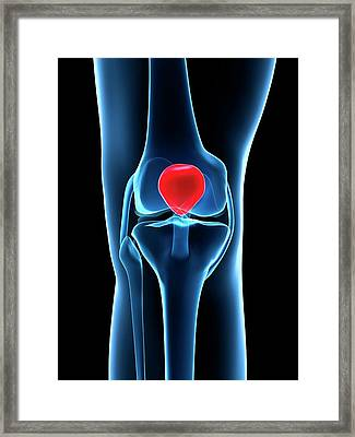 Human Knee Cap Framed Print