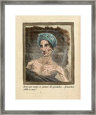 Ill Young Man Framed Print