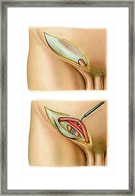 Inguinal Hernia Surgery Framed Print by Science Photo Library