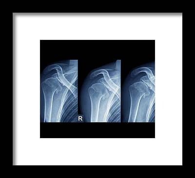 Human Joint Framed Prints