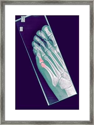 Intermediate Phalanx X-ray Framed Print