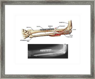 Internal Fixation Of Fractured Arm Bones Framed Print