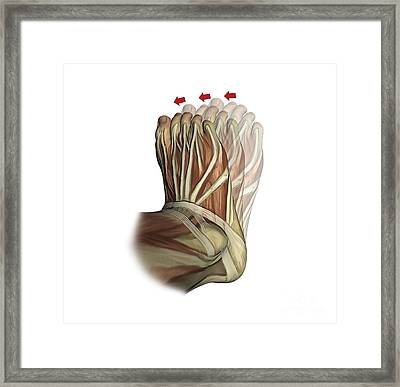 Inversion Of The Foot, Artwork Framed Print by D & L Graphics