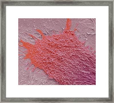Keratinocyte Framed Print