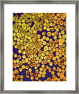 La Crosse Virus Particles Framed Print